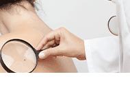 Rzepecka Elżbieta, dr nauk med. dermatolog