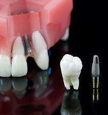 implant, Aria Dent Niepubliczny zakład opieki stomatologicznej Artur Kubica, Siewierz