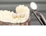 Protetyka Dentystyczna Danuta Ilnicka-Gębala