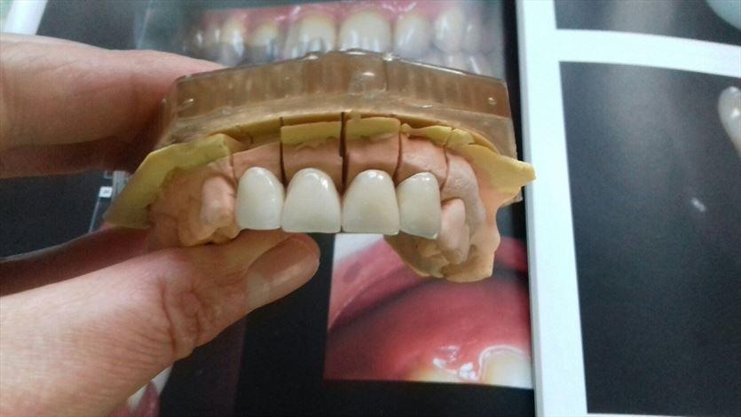 Pełna obsługa protetyczna gabinetów stomatologicznych, Laboratorium Protetyczne Borczyk Monika , Bielsko-Biała