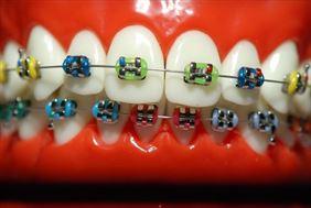 aparat ortodontyczny, Dental Med Grzegorz Wojcierowski, Wodzisław Śląski