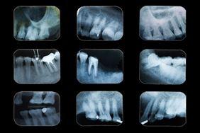 rentgen zęba, RTG Zębów Rentgen Stomatologiczny, Poznań