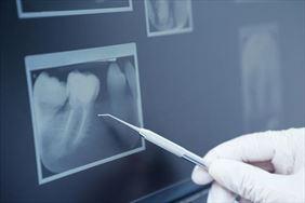 RTG zębów, Ortodentis Nadzikiewicz Marta, lek. stomatolog, Łomianki