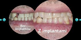 implanty, Klaudiusz Rojek Indywidualna praktyka stomatologiczna, Olsztyn