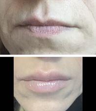 usta, Małgorzata Grella Salon Fryzjersko Kosmetyczny, Legionowo