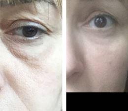 oczy, Małgorzata Grella Salon Fryzjersko Kosmetyczny, Legionowo