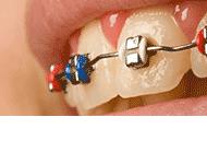 Orto-Dent Gabinet Stomatologiczno-Ortodontyczny Małgorzata Góralczyk