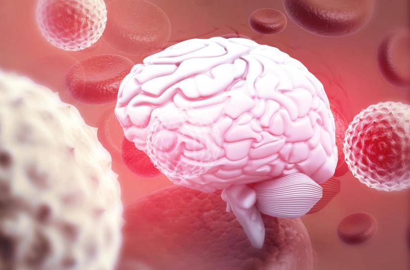 Zapalenie mózgu po różyczce. Jakie są powikłania po różyczce?