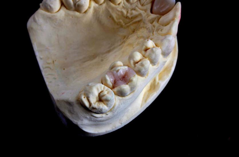 Rodzaje koron zębowych – jak wybrać właściwy
