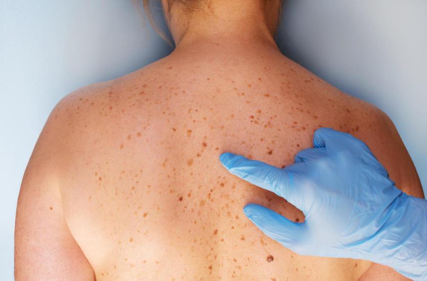 Czym jest dermatoskopia i kiedy warto z niej skorzystać?