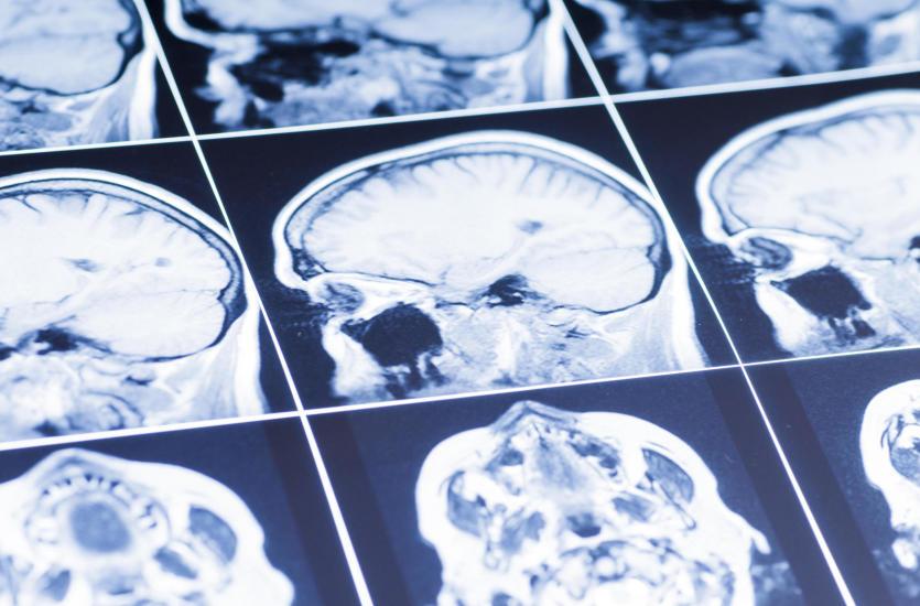 Przy jakich dolegliwościach pomaga neurolog?