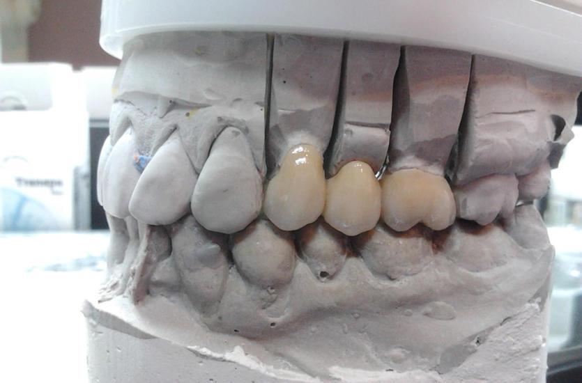 Korony na zęby – jak dopasować je do swoich potrzeb?