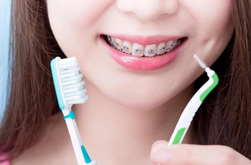 Как правильно соблюдать гигиену полости рта, нося несъемный ортодонтический аппарат?