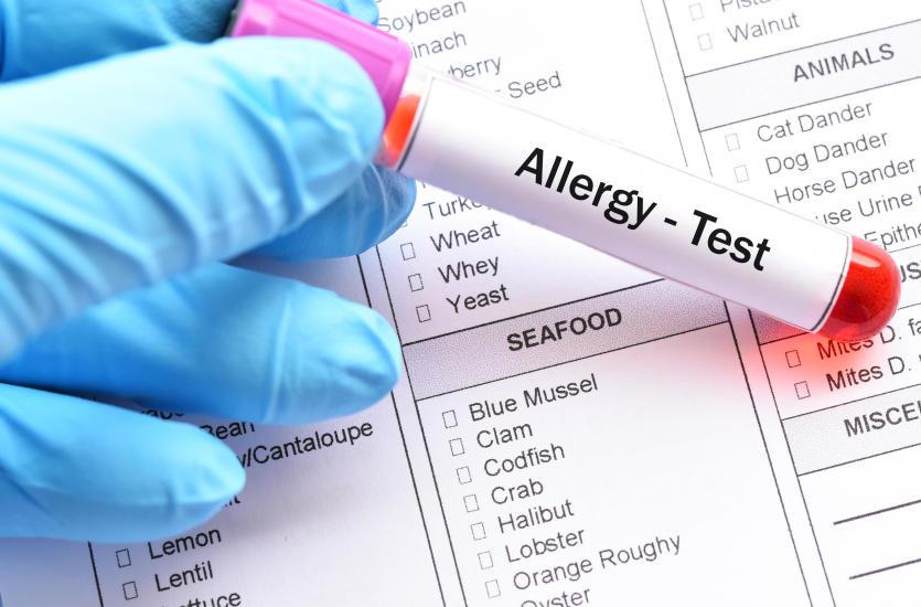 Kiedy należy zrobić testy alergiczne