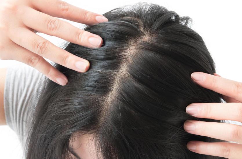 wypadanie włosów po chorobie
