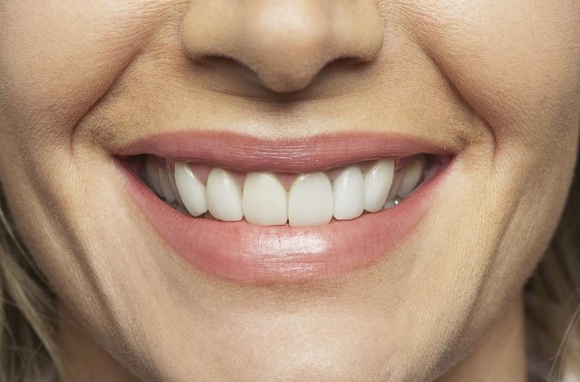 Rodzaje prac związane z implantami zębowymi