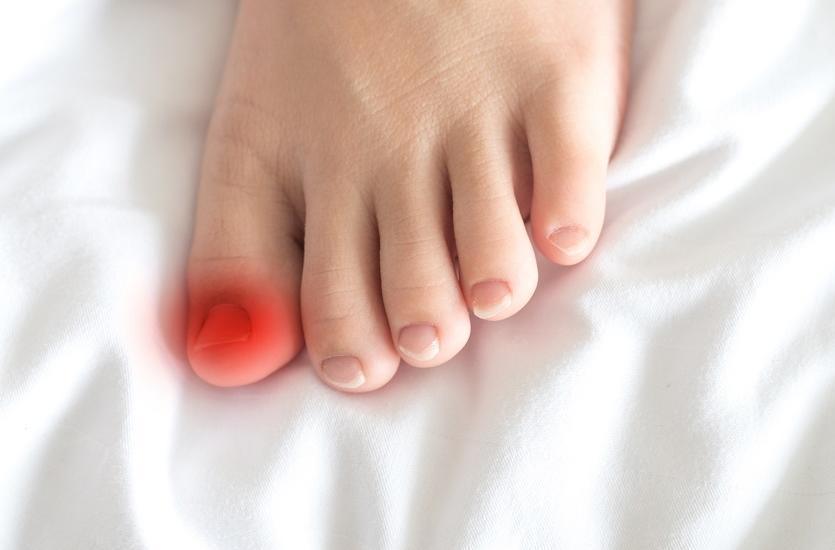 Metody postępowania z wrastającym paznokciem