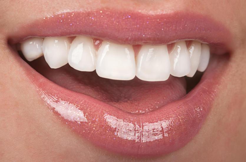 Białe zęby wizytówką każdego człowieka