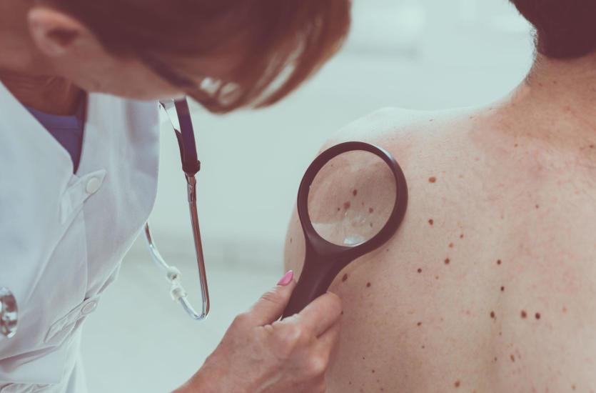 Z wizytą u dermatologa