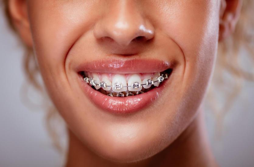 Czym są aparaty ortodontyczne samoligaturujące?