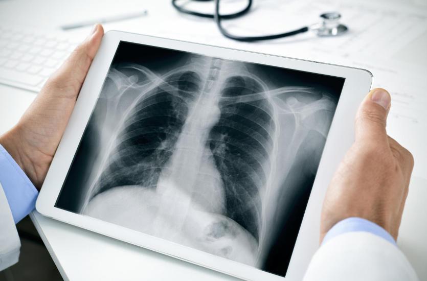 Torakochirurgia – czym zajmuje się ta dziedzina medycyny?