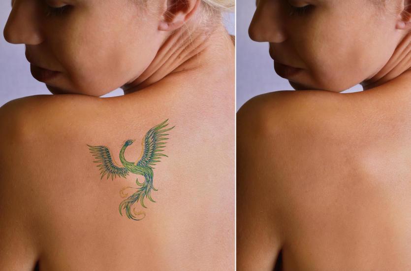 Komfortowe I Estetyczne Usuwanie Niechcianego Tatuażu