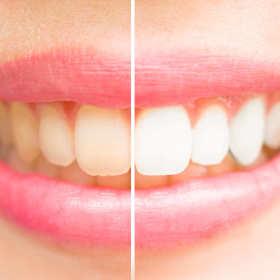 Śnieżnobiały, zdrowy uśmiech dzięki stomatologii estetycznej