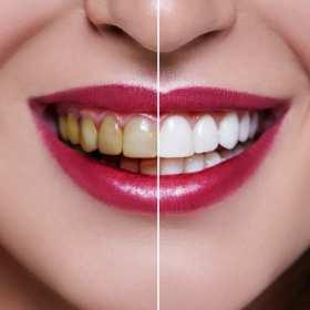 Zabiegi wchodzące w zakres stomatologii estetycznej.