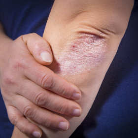 Pomoc dermatologa przy leczeniu łuszczycy