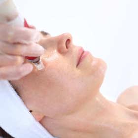 Mezoterapia igłowa – dla zdrowia i piękna skóry!