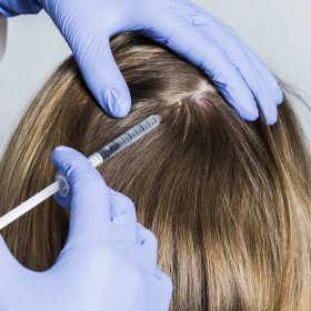 Czym jest botox do włosów?