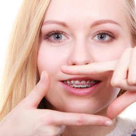 Jak żyć z aparatem ortodontycznym? Pytania i odpowiedzi