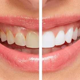 Najskuteczniejsze metody wybielania zębów