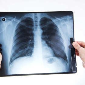 Kiedy trzeba wykonać RTG klatki piersiowej?