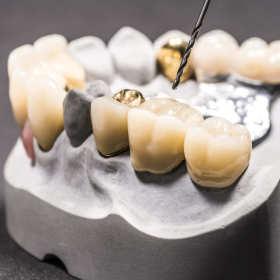 Polimeryzacja protez zębowych krok po kroku