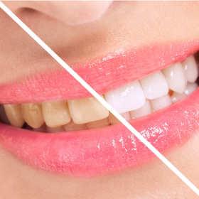 Skuteczne sposoby na białe zęby