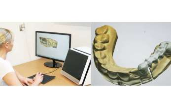Technologia CAD/CAM w protetyce