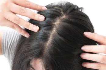 O czym świadczy osłabienie i wypadanie włosów?