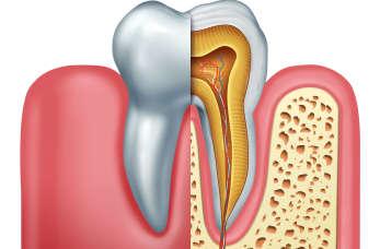 Endodoncja – co warto wiedzieć o leczeniu kanałowym?