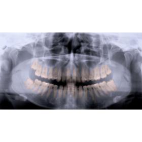 Zdjęcie panoramiczne zębów